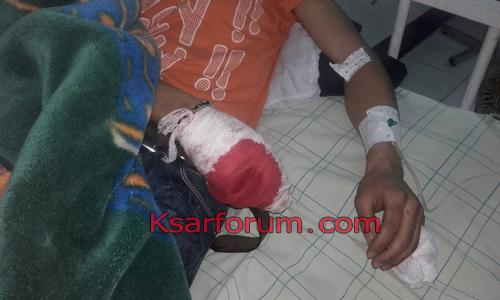 بسبب خلاف حول هاتف .. شاب يتعرض لبتر يده بغرسة الشاوش