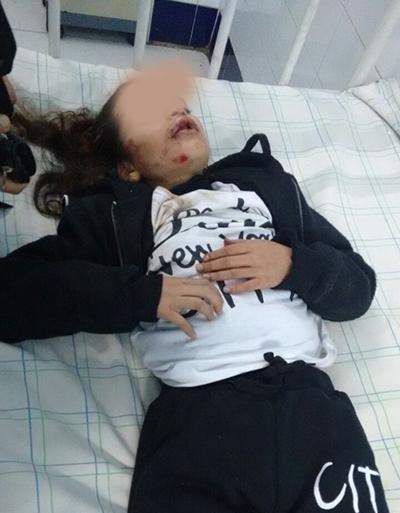 حي السلام : دراجة نارية تتسبب في كسر عدد من أسنان طفلة و تلوذ بالفرار