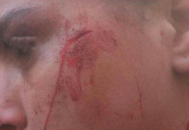 """تلميذة تضرب زميلة لها بالبركار بسبب """" الإهانة """""""