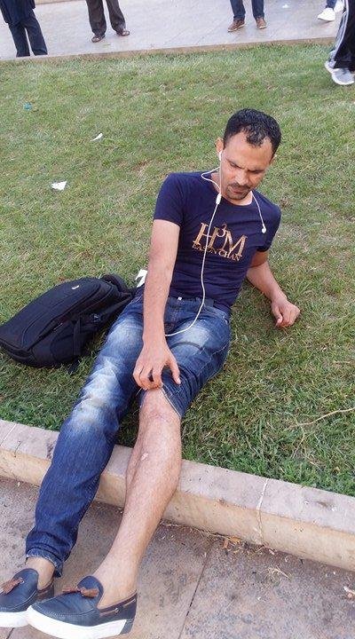 """رجال أمن يعتدون على الزميل هشام العمراني صحفي موقع """"بديل"""" (صور)"""