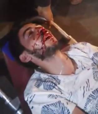 """القصر الكبير : تدخل أمني عنيف ضد """" الحراك الشعبي """" يخلف عددا من الإصابات"""