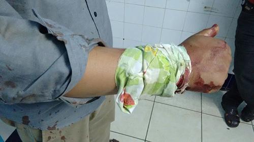 اولاد احميد : الاعتداء على نادل بعد تدخله لفض شجار بين شخصين