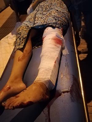 القصر الكبير : إصابة أختين بكسور في حادث سير وسط المدينة