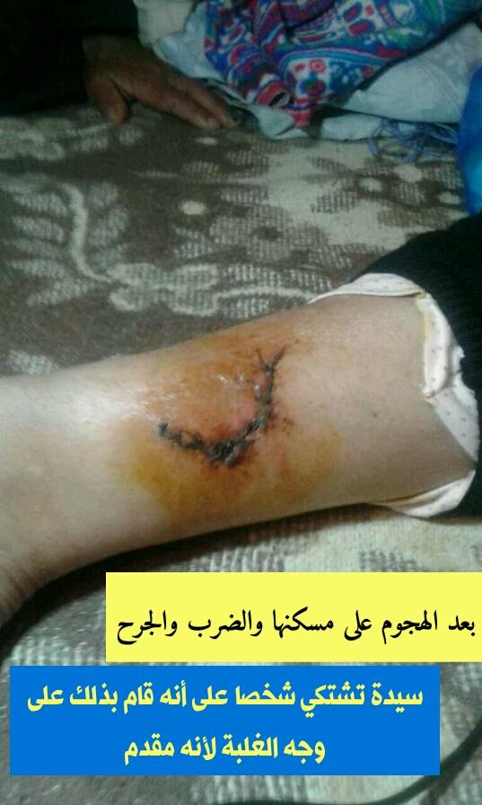 بعد الهجوم على مسكنها والضرب والجرح ، سيدة تشتكي شخصا على انه قام بذلك على وجه الغلبة لانه مقدم