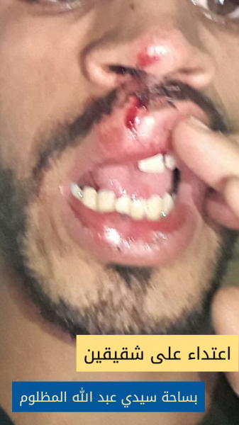 اعتداء على شقيقين بساحة سيدي عبد الله المظلوم